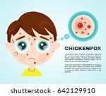 little boy baby kid face sick... | Shutterstock .eps vector #642129910