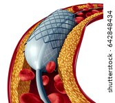 stent and angioplasty concept... | Shutterstock . vector #642848434