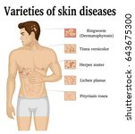 varieties of skin diseases on... | Shutterstock .eps vector #643675300