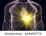 heart attack  conceptual image... | Shutterstock . vector #643696774