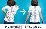 chiropractic before after image.... | Shutterstock . vector #645263620