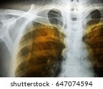 Small photo of Emphysema patient ches x-ray.