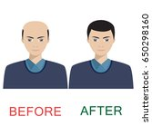 man with alopecia before and... | Shutterstock .eps vector #650298160
