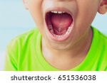 close up child caries | Shutterstock . vector #651536038