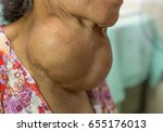 old asian female with very... | Shutterstock . vector #655176013
