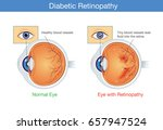 anatomy of normal eye and... | Shutterstock .eps vector #657947524