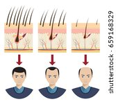 hair loss stages with male... | Shutterstock .eps vector #659168329