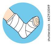 orthopedic plaster or... | Shutterstock .eps vector #662910049