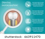 dental vector infographics with ... | Shutterstock .eps vector #663911470