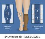 medical compression socks for...   Shutterstock .eps vector #666106213