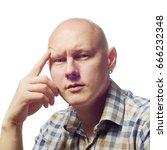 Small photo of Autoimmun total alopecia men portrait. Absolute bald head without eyebrows