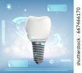 human dental implant.... | Shutterstock .eps vector #667466170