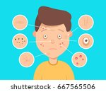 male facial skin problems... | Shutterstock .eps vector #667565506