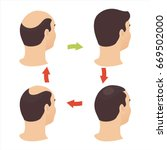 hair loss stages set of four...   Shutterstock .eps vector #669502000