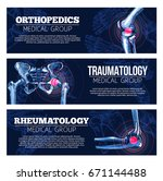 orthopedics  traumatology and... | Shutterstock .eps vector #671144488