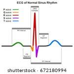 Ecg Of Normal Sinus Rhythm...