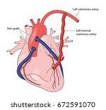 coronary artery grafts | Shutterstock .eps vector #672591070