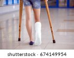 a young girl is on crutches in... | Shutterstock . vector #674149954