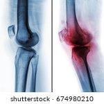 comparison between normal human ... | Shutterstock . vector #674980210