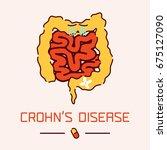 crohn's disease awareness... | Shutterstock . vector #675127090