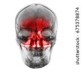 sinusitis . film x ray of human ... | Shutterstock . vector #675378874