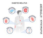 complications of diabetes... | Shutterstock .eps vector #675980389