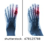 gouty arthritis . film x ray of ... | Shutterstock . vector #678125788