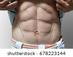 man with 6 packs line on his... | Shutterstock . vector #678223144