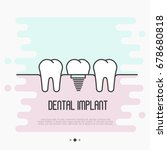 dental implant concept  two... | Shutterstock .eps vector #678680818