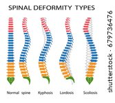 illustration of spinal... | Shutterstock .eps vector #679736476