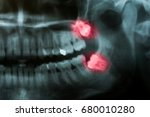 panoramic x ray image of teeth. ... | Shutterstock . vector #680010280
