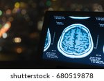 magnetic resonance image  mri... | Shutterstock . vector #680519878