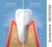 human teeth and dental implant... | Shutterstock .eps vector #681421960