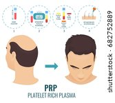 male hair loss treatment with... | Shutterstock . vector #682752889