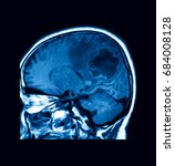 Small photo of MRI scan of the brain, showing brain abscess (or cerebral abscess)