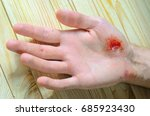 Small photo of Deep abrasion in the palm of the person. Medical background
