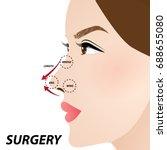 nose beauty surgery  ... | Shutterstock .eps vector #688655080