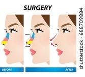 nose beauty surgery  ... | Shutterstock .eps vector #688709884