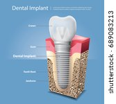 human teeth and dental implant... | Shutterstock .eps vector #689083213
