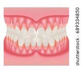 dentures with white teeth ... | Shutterstock .eps vector #689334850