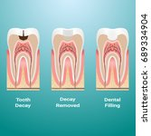 treatment of caries. dental... | Shutterstock .eps vector #689334904