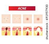 types of acne vector... | Shutterstock .eps vector #691957930