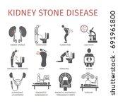 kidney stones. symptoms ... | Shutterstock .eps vector #691961800