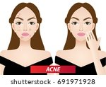 acne skin problems before and... | Shutterstock .eps vector #691971928
