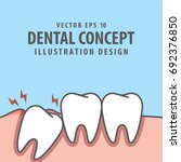 impacted tooth inside under... | Shutterstock .eps vector #692376850