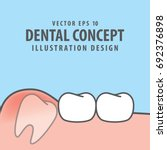 impacted tooth inside under... | Shutterstock .eps vector #692376898