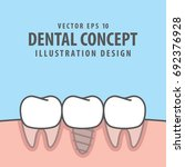 implant tooth between real...   Shutterstock .eps vector #692376928