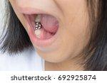 silver amalgam crown dental... | Shutterstock . vector #692925874
