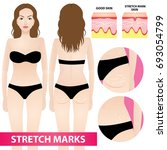 woman stretch marks skin vector ... | Shutterstock .eps vector #693054799