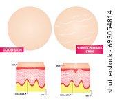 stretch marks skin vector... | Shutterstock .eps vector #693054814